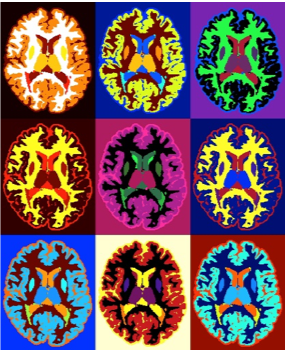 Picture of colored brain scans