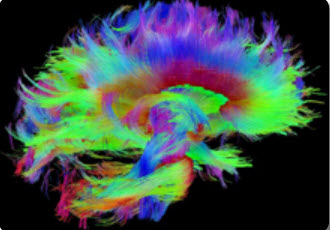 rainbow image of brain