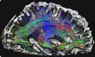 magnetic resonance image of brain