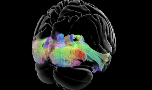 3D Diffusion Tractography  - Second Place winner