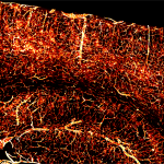 AAV-PHP.V1 carrying iCre under Ple261 endothelial-specific promoter, transduces the brain vascular cells of Ai14-reporter mouse expressing tdtomato.