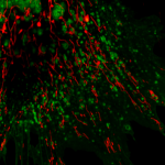 Cultured rat astrocytes transduced with mitochondria RFP in red and lysosome GFP in green