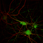 Human Cortical neurons differentiated from induced stem cells for 4 weeks and labeled with dendrite marker MAP-2(Red) and axon marker NEFL(green)