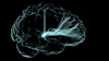 Brain image with stimulation